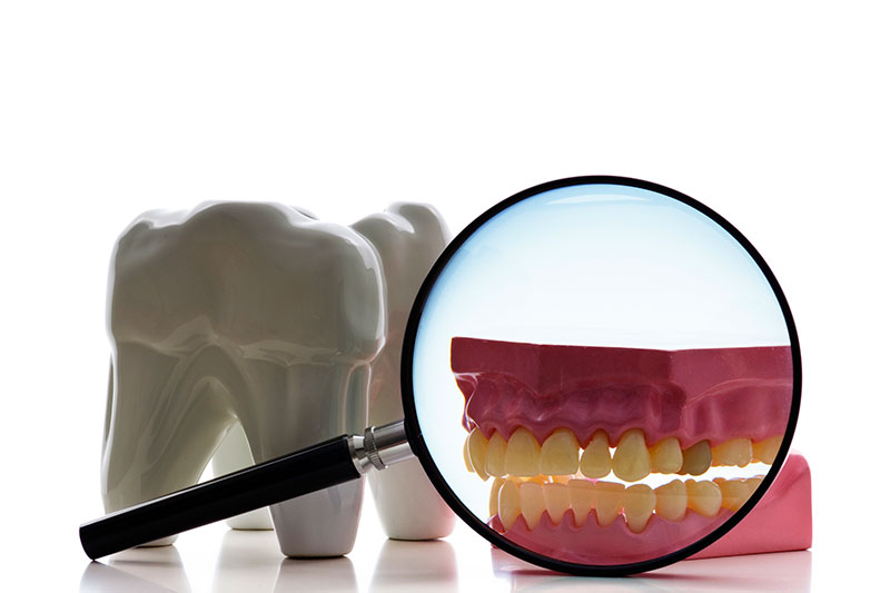Root Canal in Arlington Heights, IL 60004
