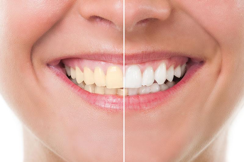 Teeth Whitening in Arlington Heights, IL 60004